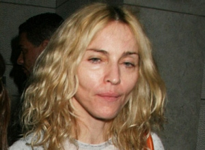 madonna-bad-plastic-surgery-10