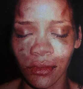 _rihanna_beaten_face